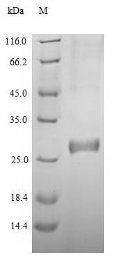 SDS-PAGE - Recombinant Human DNMT3A