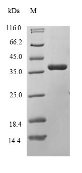 SDS-PAGE- Recombinant protein Human DLK1