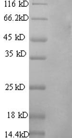 SDS-PAGE- Recombinant protein Rat Pros1