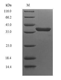 SDS-PAGE- Recombinant protein Escherichia insE1