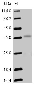 SDS-PAGE- Recombinant protein Human OLIG2