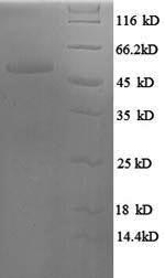 SDS-PAGE- Recombinant protein Human SRSF9