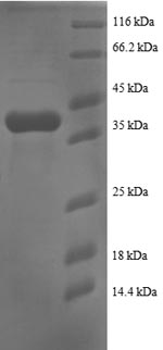 SDS-PAGE- Recombinant protein Human RPS25