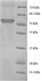 SDS-PAGE- Recombinant protein Human RPS9