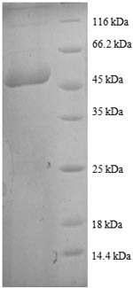 SDS-PAGE- Recombinant protein Human TAGLN