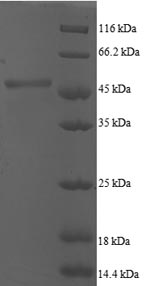 SDS-PAGE- Recombinant protein Human ARF5