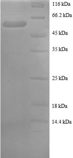 SDS-PAGE- Recombinant protein Human SNRPA