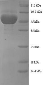SDS-PAGE- Recombinant protein Human PRDX1