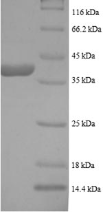 SDS-PAGE- Recombinant protein Human LDHB
