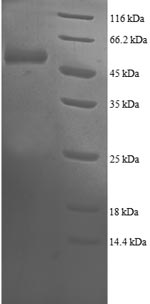 SDS-PAGE- Recombinant protein Human PSMB4