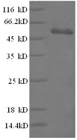 SDS-PAGE- Recombinant protein Human HMGB1