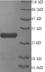 SDS-PAGE- Recombinant protein Human XRCC6