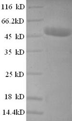 SDS-PAGE- Recombinant protein Human CSNK2B