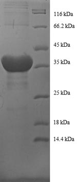 SDS-PAGE- Recombinant protein Human HIST1H2BC