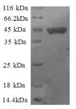 SDS-PAGE- Recombinant protein Human RPS11