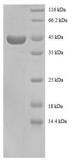 SDS-PAGE- Recombinant protein Human RPS13