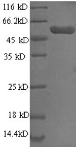 SDS-PAGE- Recombinant protein Human PHGDH