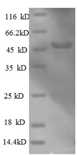 SDS-PAGE- Recombinant protein Human ARPC3