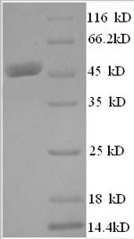 SDS-PAGE- Recombinant protein Human KAT7