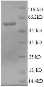 SDS-PAGE- Recombinant protein Human TUBB3
