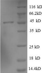 SDS-PAGE- Recombinant protein Human ARL2BP