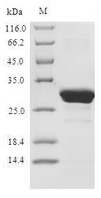 SDS-PAGE- Recombinant protein Human NFKB3