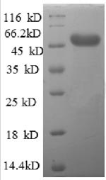 SDS-PAGE- Recombinant protein Human AFG3L2