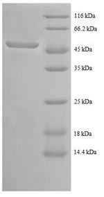 SDS-PAGE- Recombinant protein Human ABL1