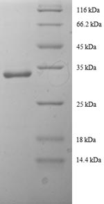 SDS-PAGE- Recombinant protein Human SLC20A3