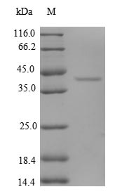 SDS-PAGE- Recombinant protein Human EIF1
