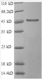 SDS-PAGE- Recombinant protein Human SCAMP3