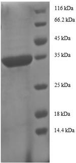 SDS-PAGE- Recombinant protein Human CCL5
