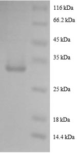 SDS-PAGE- Recombinant protein Human EGF