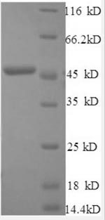 SDS-PAGE- Recombinant protein Human IFNB1