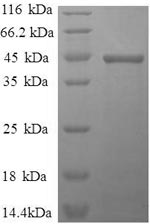 SDS-PAGE- Recombinant protein Human IL1B