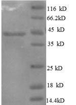 SDS-PAGE- Recombinant protein Human IL10