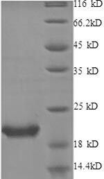 SDS-PAGE- Recombinant protein Human IL1RN