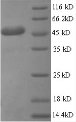 SDS-PAGE- Recombinant protein Human IL6