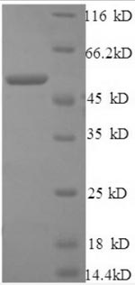 SDS-PAGE- Recombinant protein Human CTSB