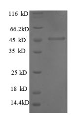 SDS-PAGE- Recombinant protein Human MMP1