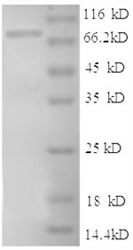 SDS-PAGE- Recombinant protein Human ICAM1