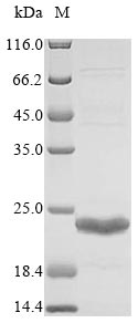 SDS-PAGE- Recombinant protein Acinetobacter NDM-1