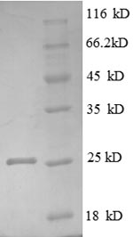 SDS-PAGE- Recombinant protein Human LTBR