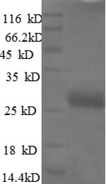 SDS-PAGE- Recombinant protein Rat Vegfa