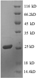 SDS-PAGE- Recombinant protein Escherichia rpsD