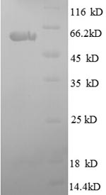 SDS-PAGE- Recombinant protein Human SPARC