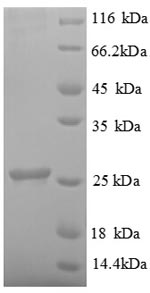 SDS-PAGE- Recombinant protein Human UBE2K