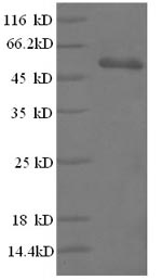 SDS-PAGE- Recombinant protein Human CD3E