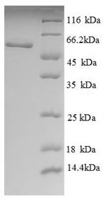 SDS-PAGE- Recombinant protein Human LCAT
