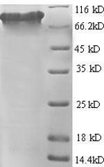 SDS-PAGE- Recombinant protein Human FOLH